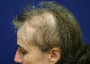 Doctors Donate Reconstructive Hair Surgery to Veteran